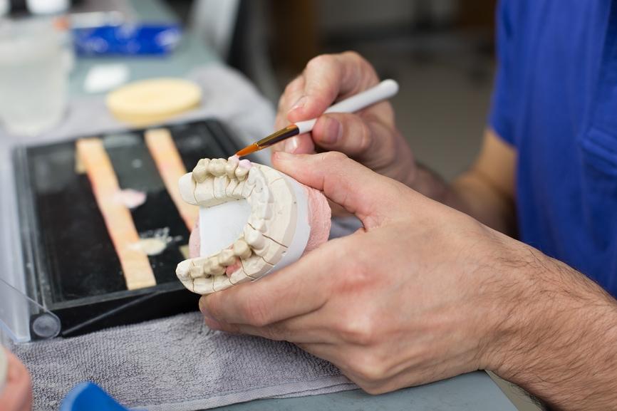 dental crown filling technician